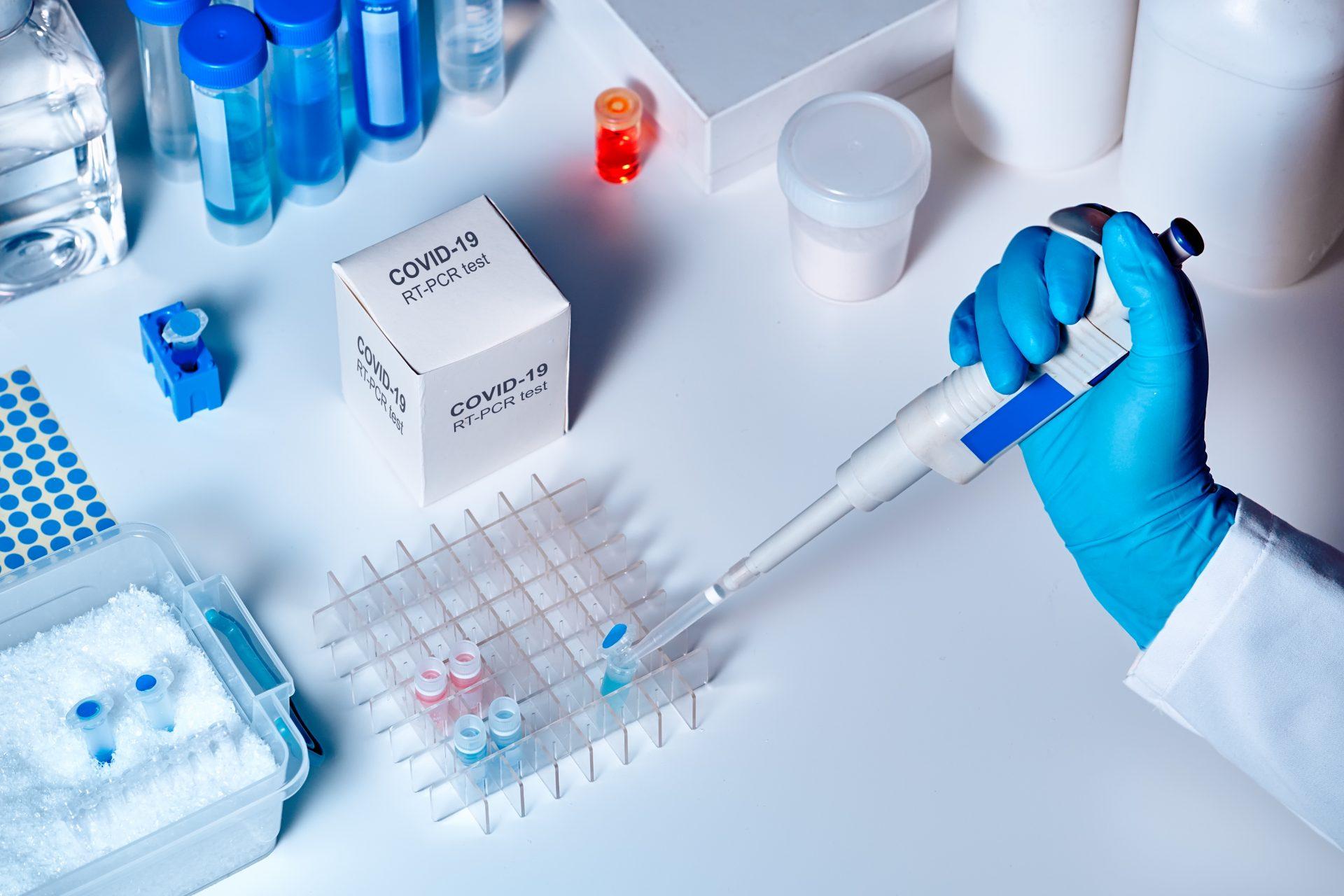 UPC está en el frente de lucha contra el COVID-19 a través de la investigación científica